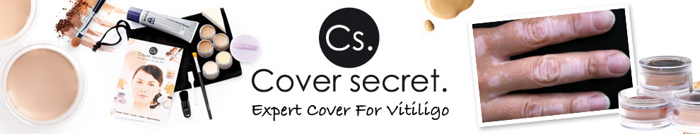 Expert Cover for Vitiligo